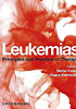Leukemias. principles and practice of therapy